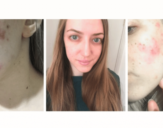 A series of a photos showing my skin with cystic acne, and how it looks now it's clear