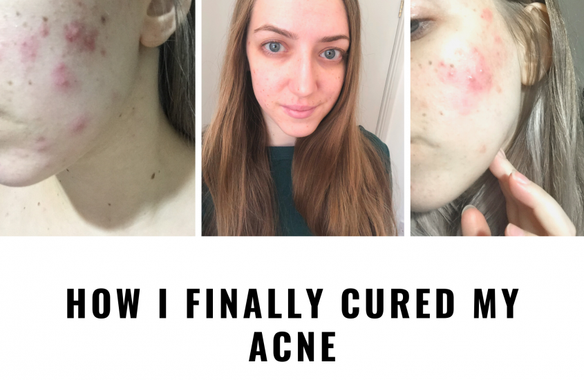 How I finally cured my acne